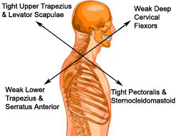 Upper Crossed Syndrome - Physical Therapy - CyberPT